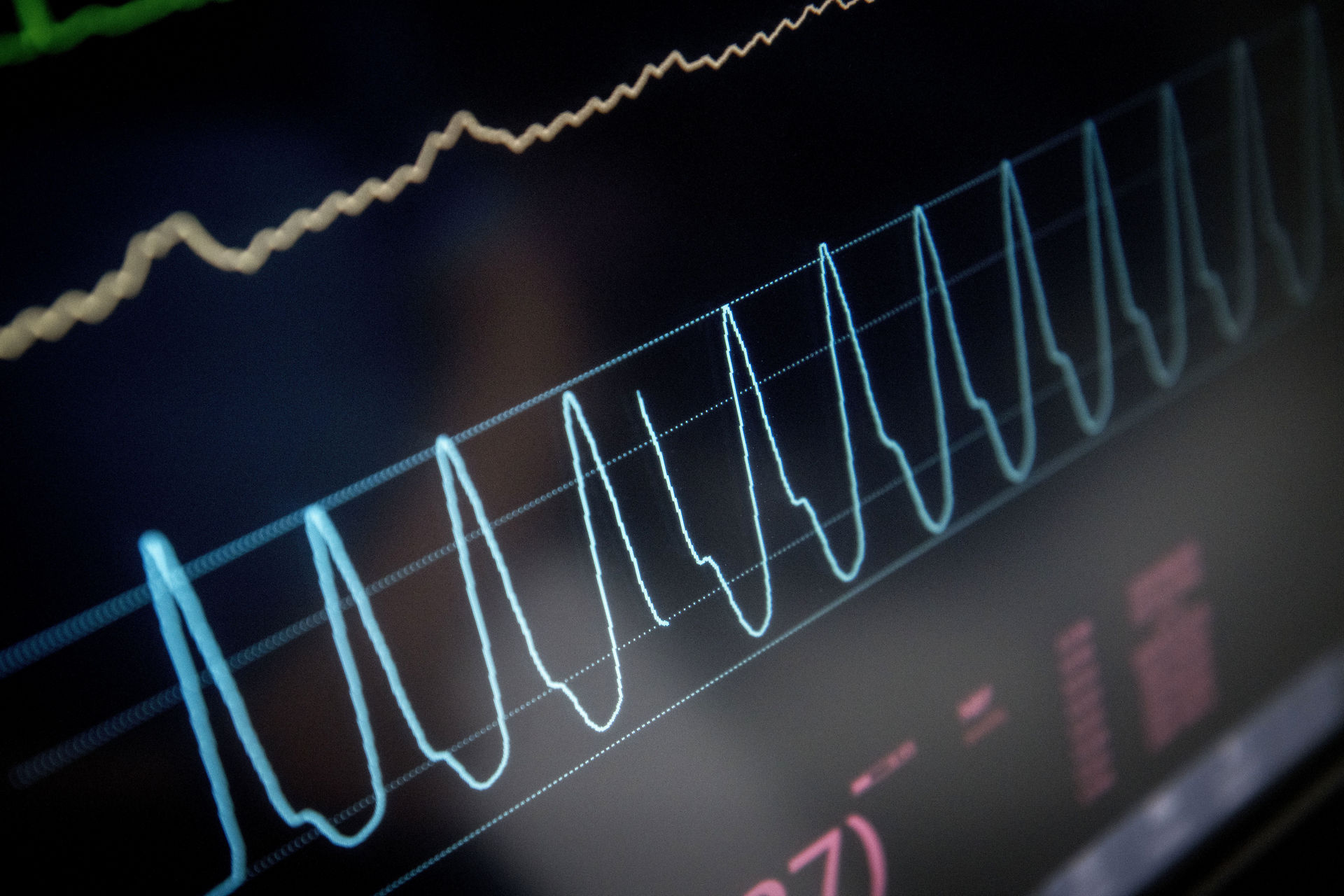 FAKTA: Forskellen på hjertedød og hjernedød