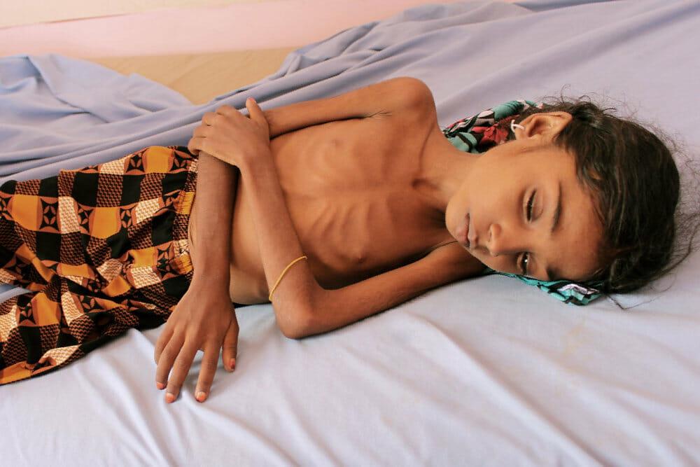 Red Barnet: Yemen er det værste sted i verden at være barn